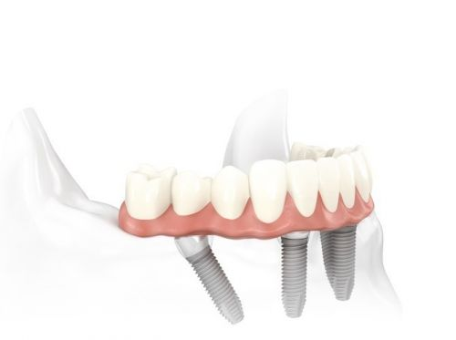 Specialist Oral Surgery - Gold Coast Dentists