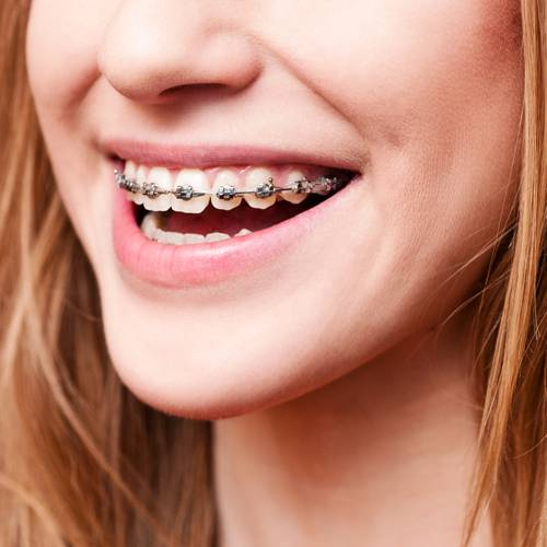 Cairns Specialist Orthodontists - Gold Coast Dentists